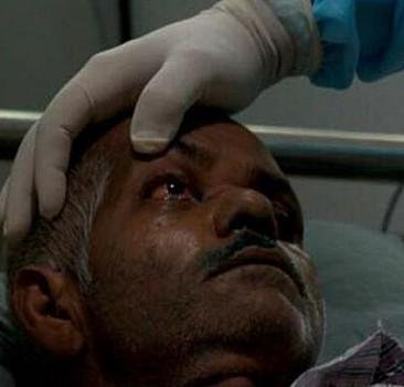 Kara mantar hastalığı, burun, göz ve beyni etkiliyor
